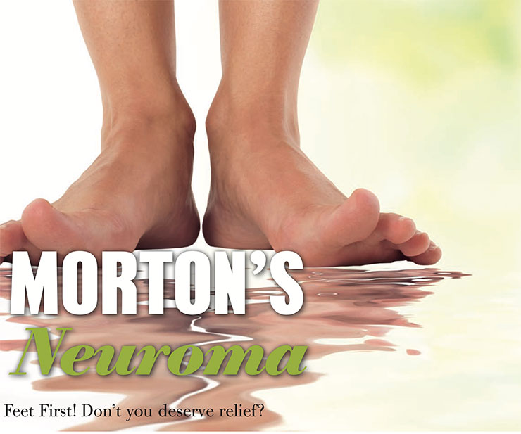 Morton's Neuroma relief